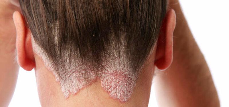 La psoriasis es una enfermedad crónica inflamatoria de la piel que generalmente se caracteriza por presentar piel enrojecida cubierta por una acumulación escamosa en cualquier parte del cuerpo.